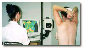 breast scan using digital infrared thermal imaging (DITI)