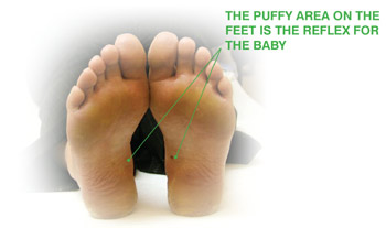 Photo showing the puffy area on the feet, which is the reflex for the baby