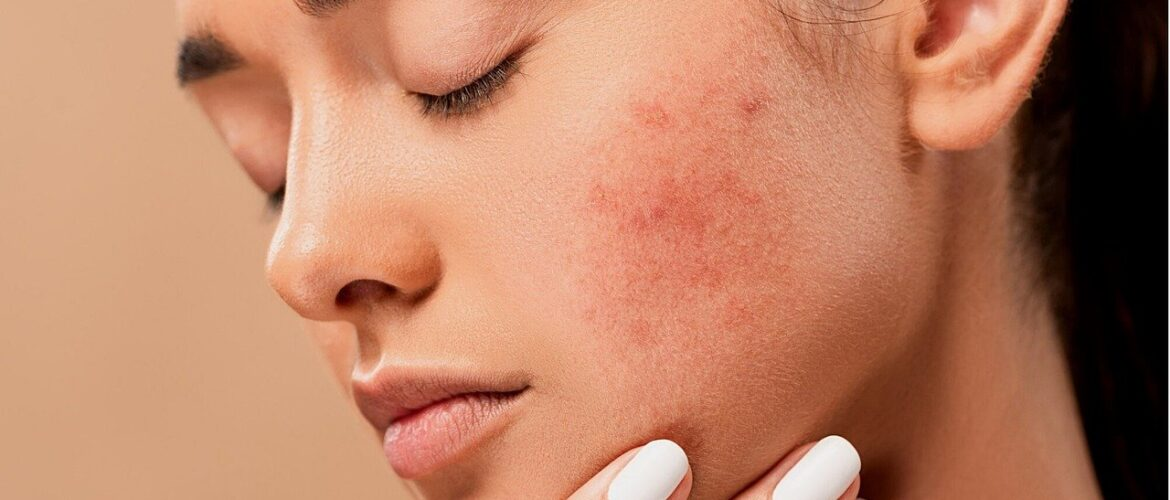 How To Effectively Manage And Treat Acne