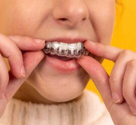 For teeth straightening, Benefits of Choosing Invisalign Instead of Braces