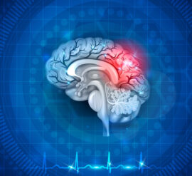 Caring for a loved one with a traumatic brain injury